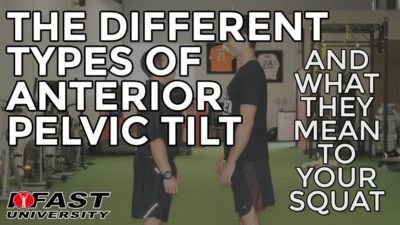 The Different Types of Anterior Pelvic Tilt (And What They Mean To Your Squat)